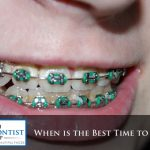 When Is The Best Time To Get Braces