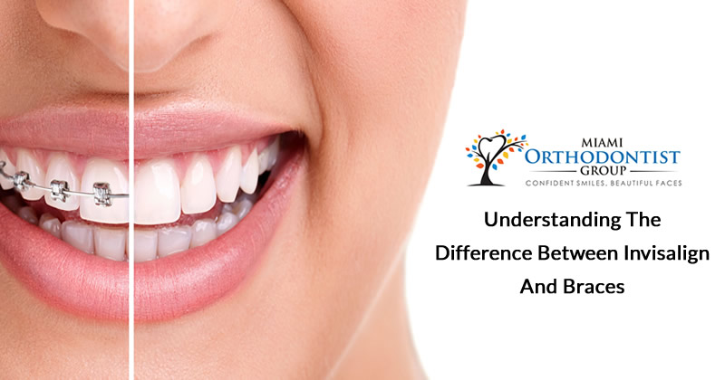 Understanding the Difference between Invisalign and Braces