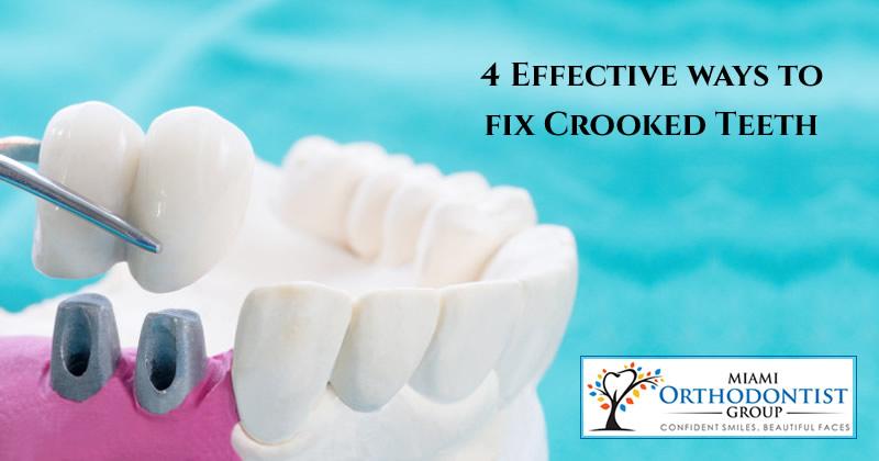 4 Effective ways to fix Crooked Teeth