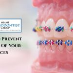 7 Ways To Prevent Staining Of Your Braces