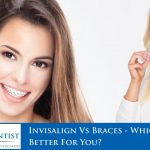 Invisalign Vs Braces - Which Is Better For You