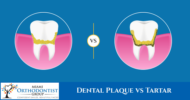 Dental Plaque vs Tartar