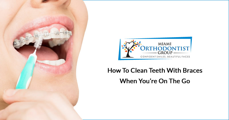 How to Clean Teeth with Braces When You're on the Go