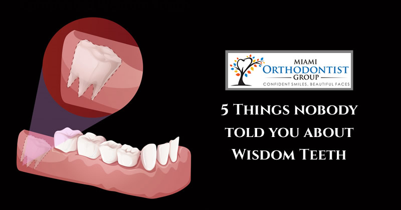 5 Things nobody told you about Wisdom Teeth