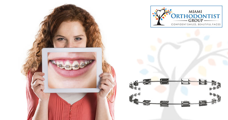 How To Prevent Tooth Decay While Wearing Braces