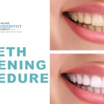 Things You Should Know About The Different Types of Teeth Whitening Procedures