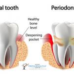 What Are Periodontal Disease Symptoms