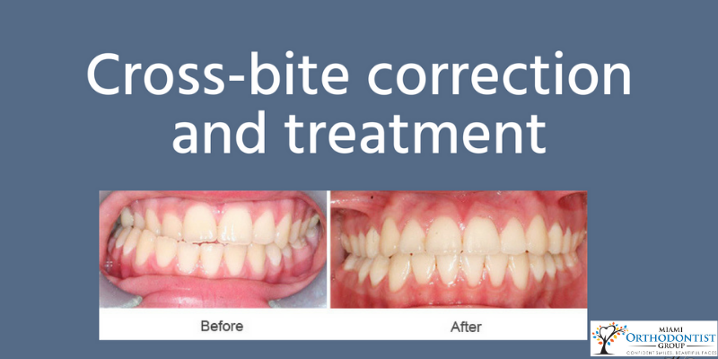 What Is A Crossbite_ Signs, Effects, and Treatment