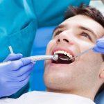 First Procedure Of Dentofacial Treatment_ Teeth Whitening