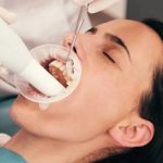 How Important Is Dental Deep Cleaning For Oral Health